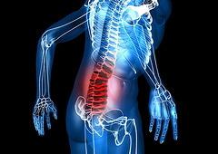 low_back_pain2